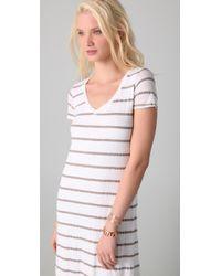 Splendid   White Nutmeg Stripe Dress   Lyst