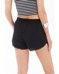Forever 21 - Black Lace-trim Dolphin Shorts - Lyst
