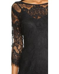 BB Dakota | Black Natalia V Back Lace Dress | Lyst