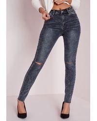 Missguided | Blue Hustler Mid Rise Ripped Knee Skinny Jeans Vintage Indigo | Lyst