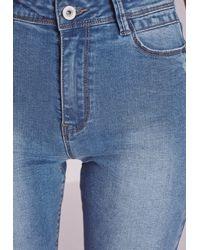 Missguided | Hustler Mid Rise Skinny Jeans Retro Blue | Lyst
