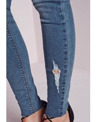 Missguided | Hustler Mid Rise Ripped Skinny Jeans Mottle Blue | Lyst