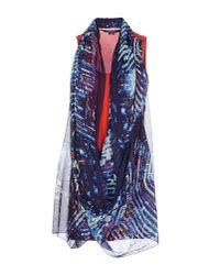 Entre Amis - Blue Short Dress - Lyst