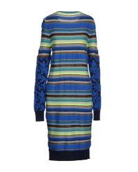 Matthew Williamson - Blue Knee-length Dress - Lyst