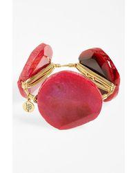 Bourbon and Boweties | Pink Bourbon & Boweties 'xxl' Dyed Agate Bracelet | Lyst