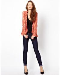 American Retro - Lace Blazer - Lyst