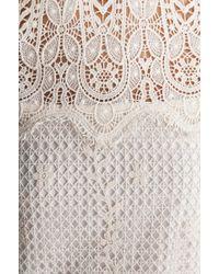 Dolce Vita Mikella Dress - Lyst