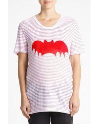Zoe Karssen | Bat Striped Loose Fit T-shirt | Lyst