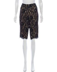 Robert Rodriguez - Lace Knee-length Shorts Black - Lyst