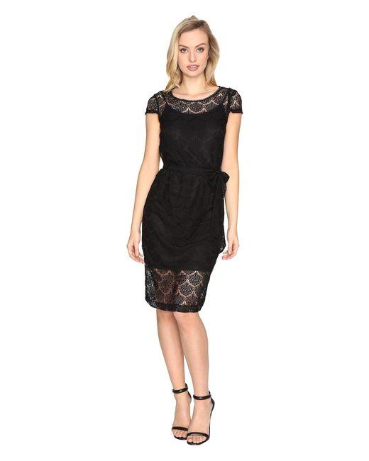 Jessica Simpson | Black Scalloped Lace Dress | Lyst