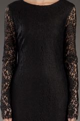 Mcq By Alexander Mcqueen Lace Dress in Black - Lyst