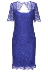 Emilio Pucci Lace Dress - Lyst