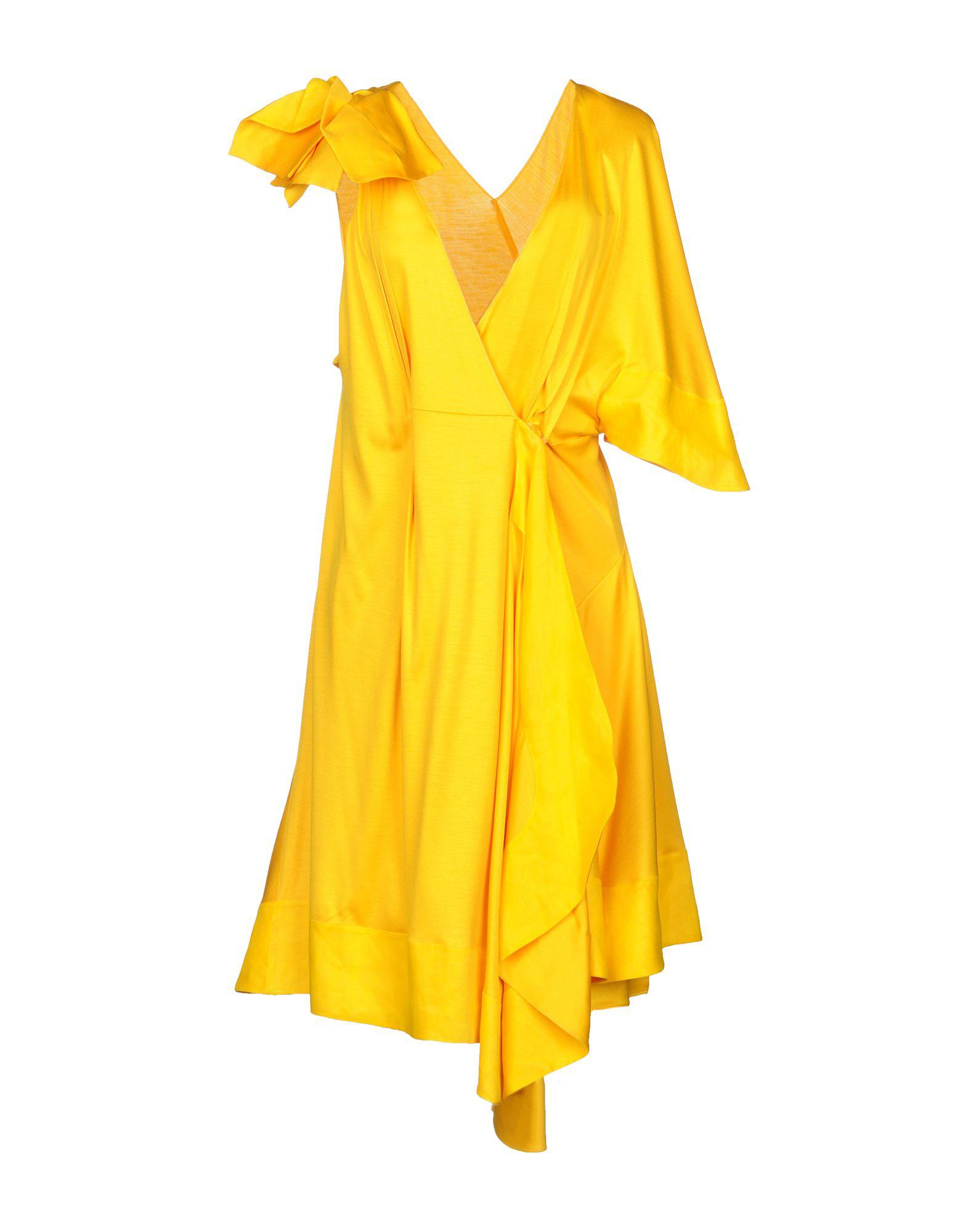 shortsleeved button dress - Yellow & Orange Sonia Rykiel The Cheapest Online Sale Online Get To Buy Cheap Online Sale Professional Get Authentic w36ThlZ